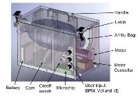 Vyvíjame prototyp pľúcneho ventilátora